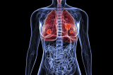 Lung cancer set to become main cause of deaths in women