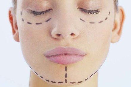 10 questions to ask yourself before having cosmetic surgery