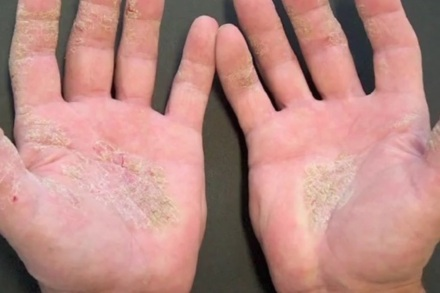Up to 6 million people suffer from hand eczema in the UK
